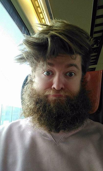31 декабря 2017 года Аман Хэмблтон сообщил в Facebook, что собирается побрить бороду, так как цель достигнута